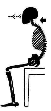 Рис 5. Положение таза, спины, шеи и головы при сутулой позе. (From Barlow, 1973)