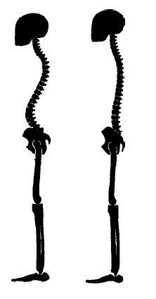 Рис. 6. Сгорбленная (слева) и хорошо уравновешенная  поза (справа) (From Barlow, 1973.)