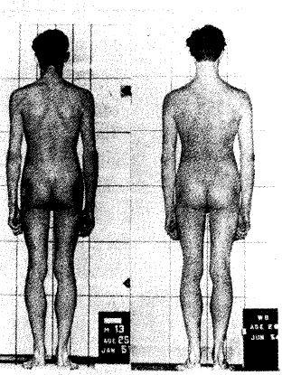 Рис. 7. Фигура до (слева) и после (справа) лечения по Александеру. Фотография слева показывает напряженные мышцы на основании шеи, поднятые плечи и напряженные ягодицы. После лечения эти напряжения исчезли и даже оказался выше ростом (From Barlow, 1973.)